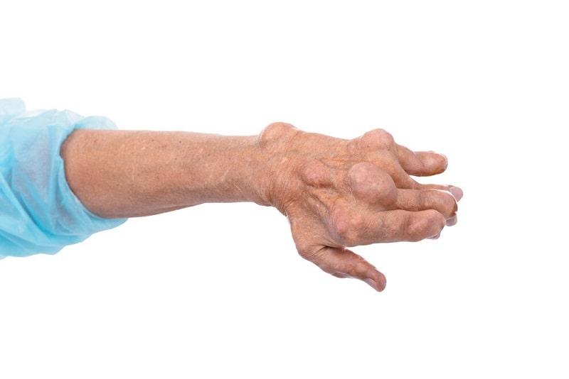 رماتیسم عفونی و درمان آن