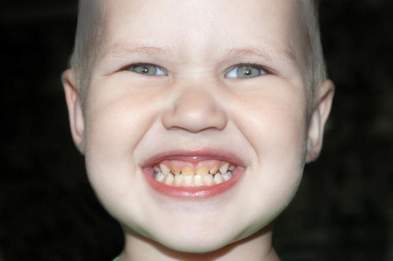 اصلاح دندان های نامرتب با برهموم